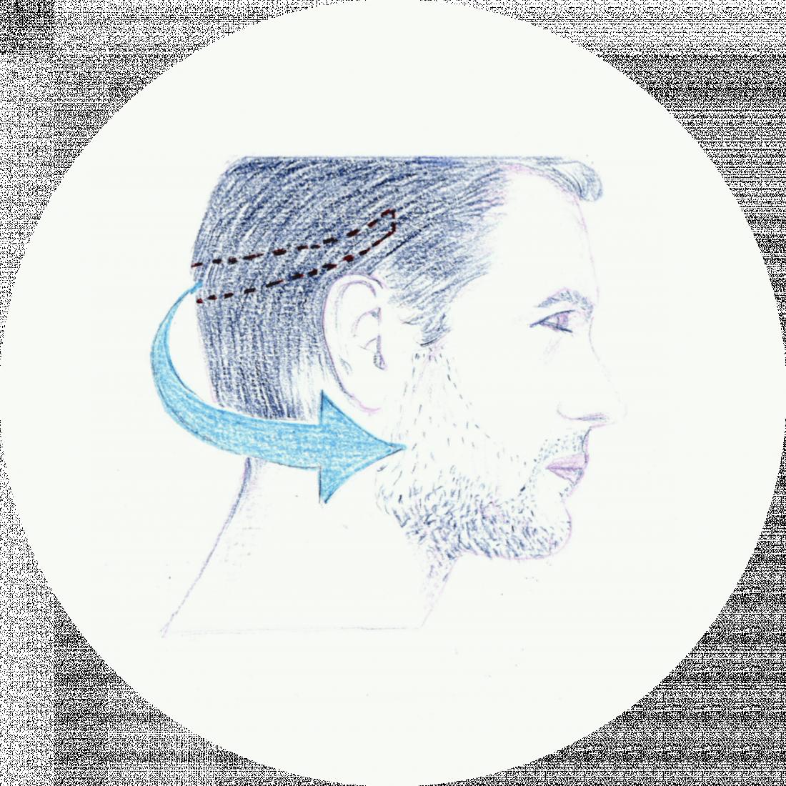 Procedure details: Beard Transplantation