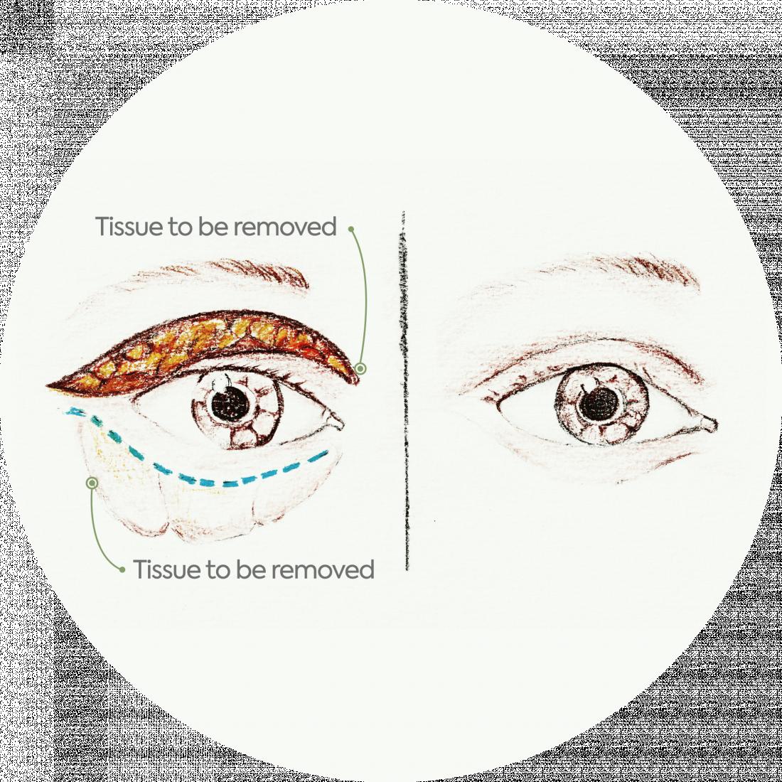 Procedure Details: Blepharoplasty