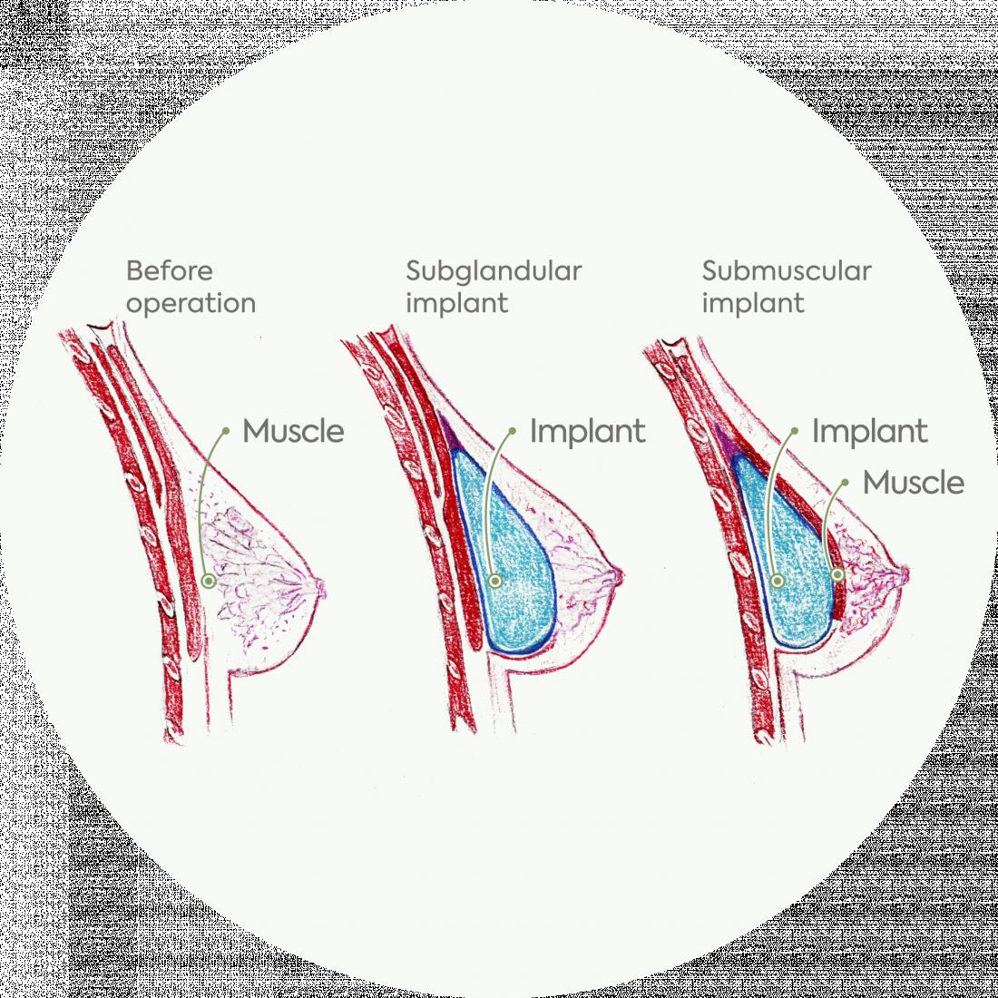 Procedure details : Breast Augmentation