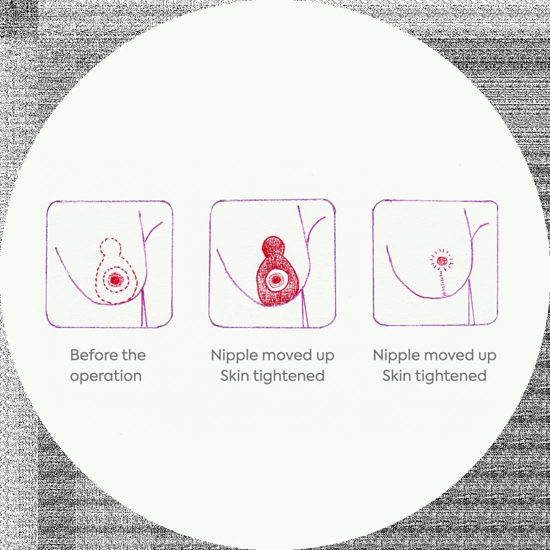Procedure details: Breast Lift