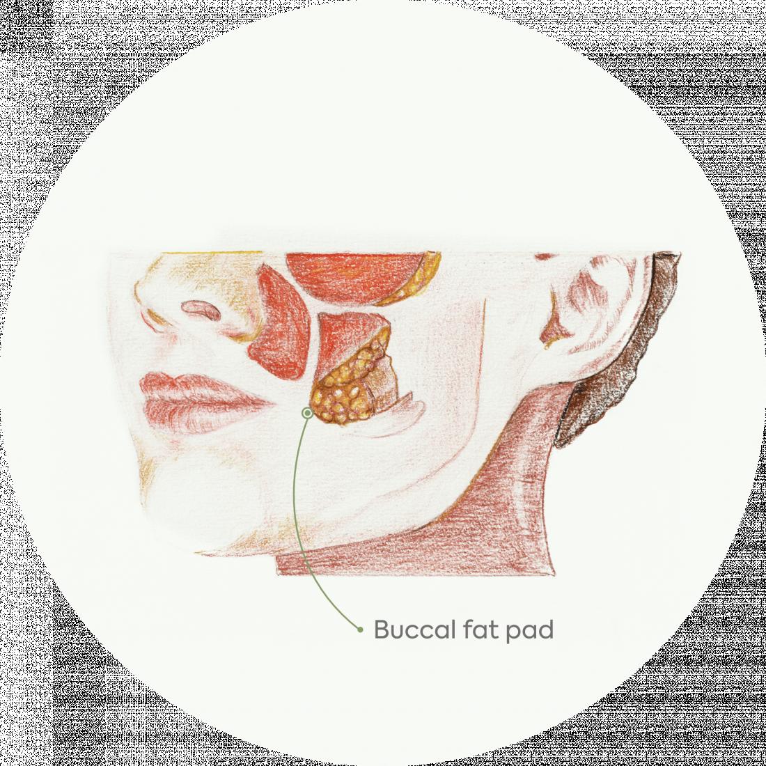 Procedure details : Bichectomy