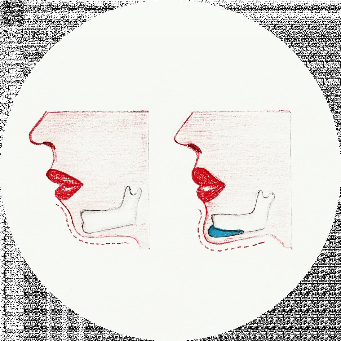 Procedure details : Chin Implant