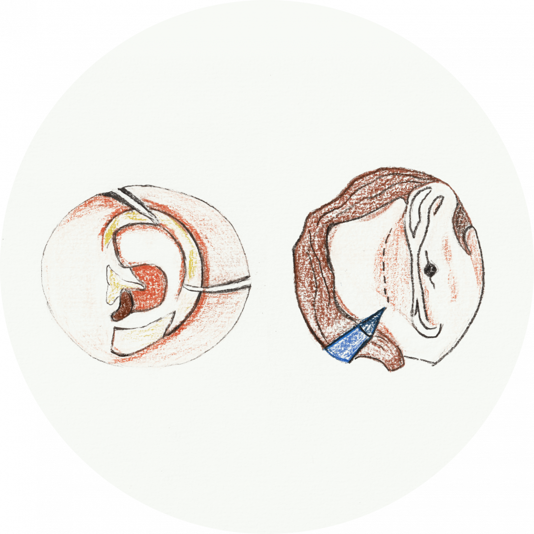 Procedure details: Ear Reshaping