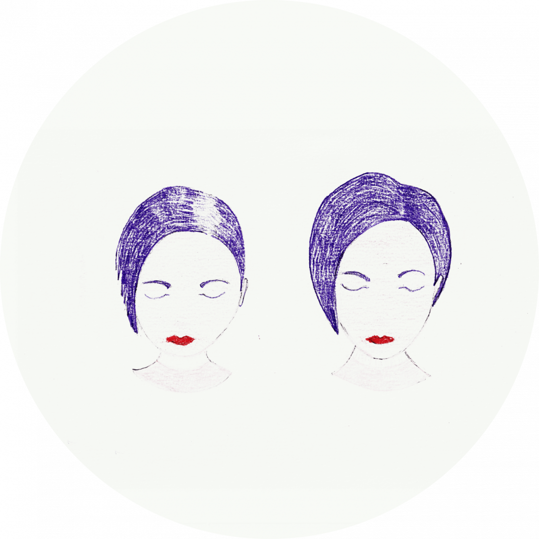 Procedure details: Hair Transplantation