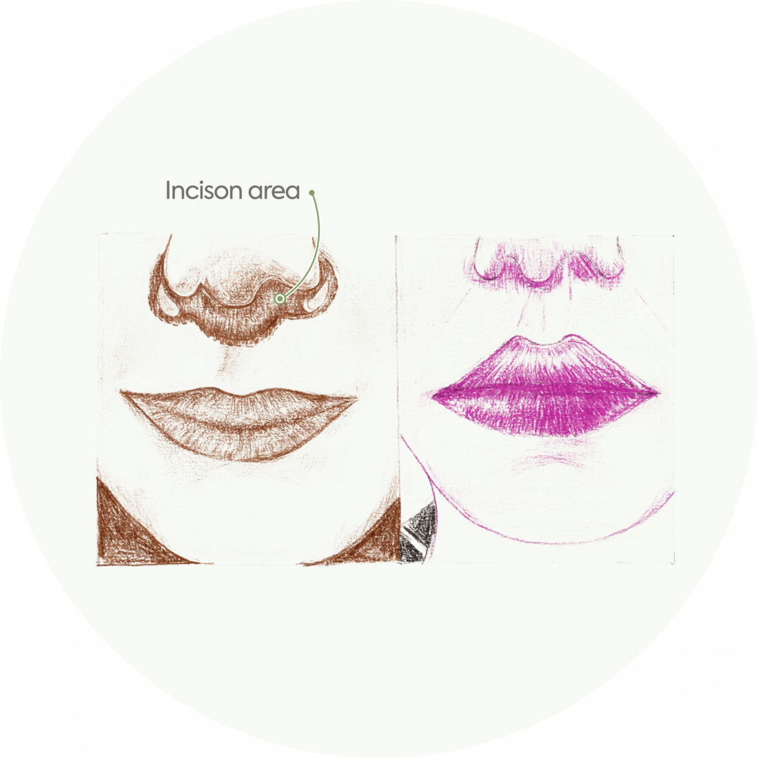 Procedure details: Lip Lift