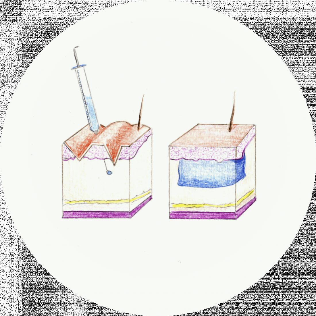 Procedure details: Lip Fillers