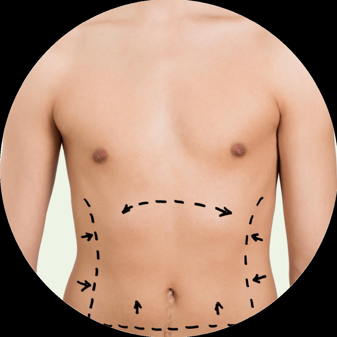 Male Vaser Liposuction