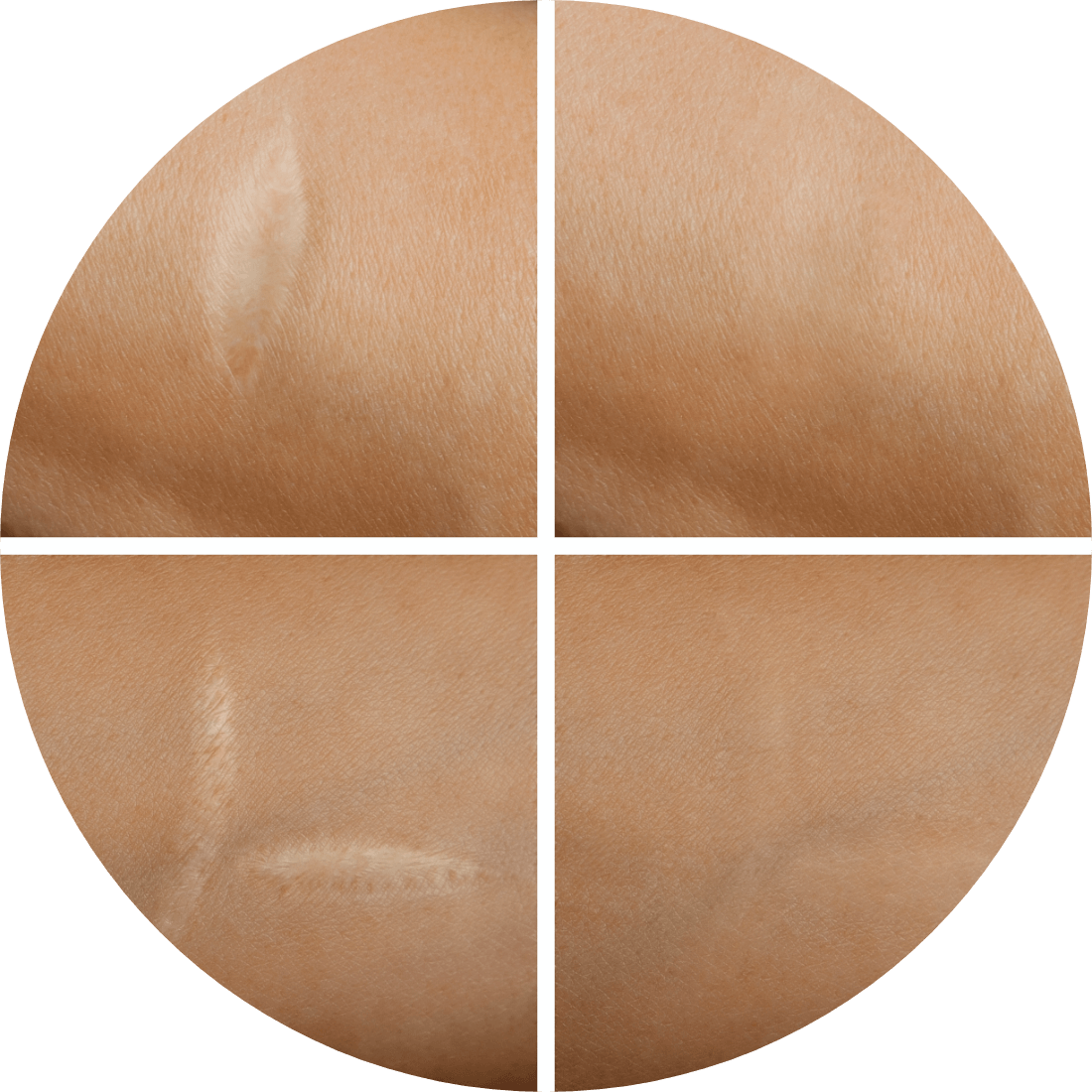 Why do people choose Scar Removal?