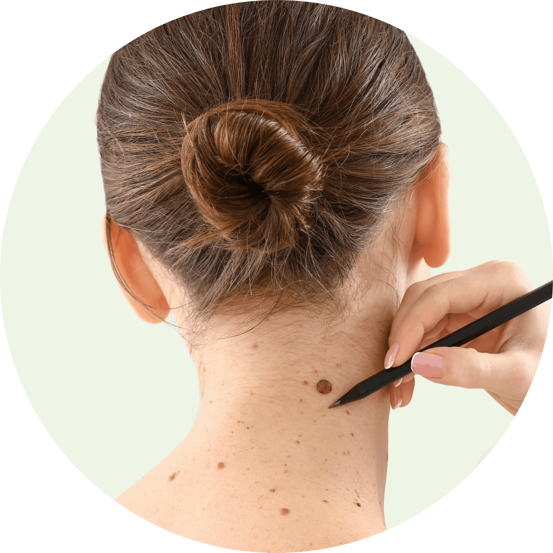 Why do people choose Mole Removal?