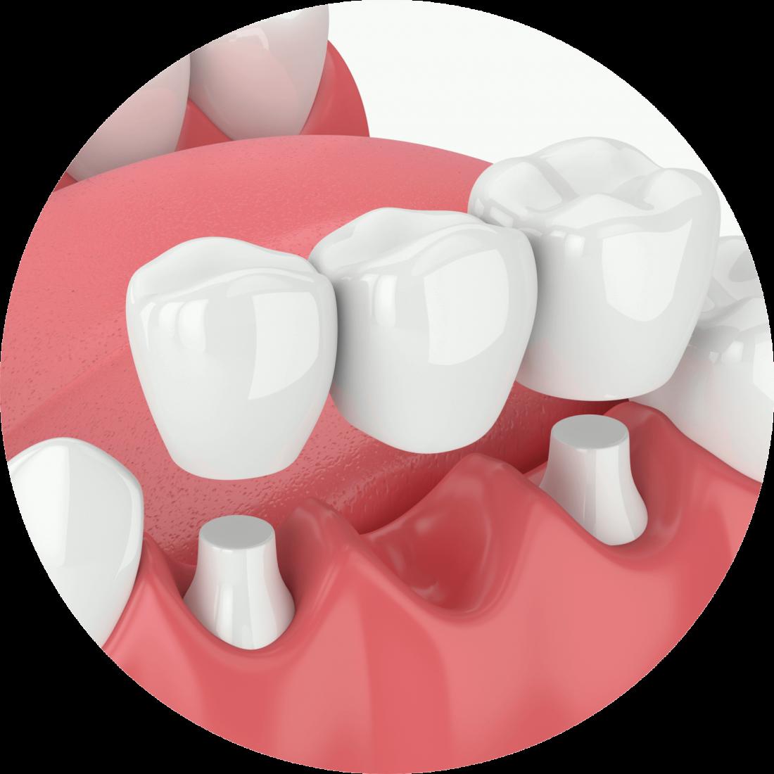 Procedure details: Crown Treatment