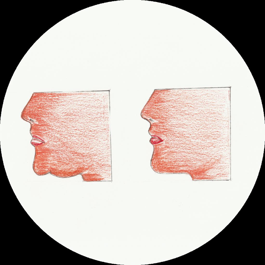 Dettagli Procedurali: Liposuzione del Doppio Mento