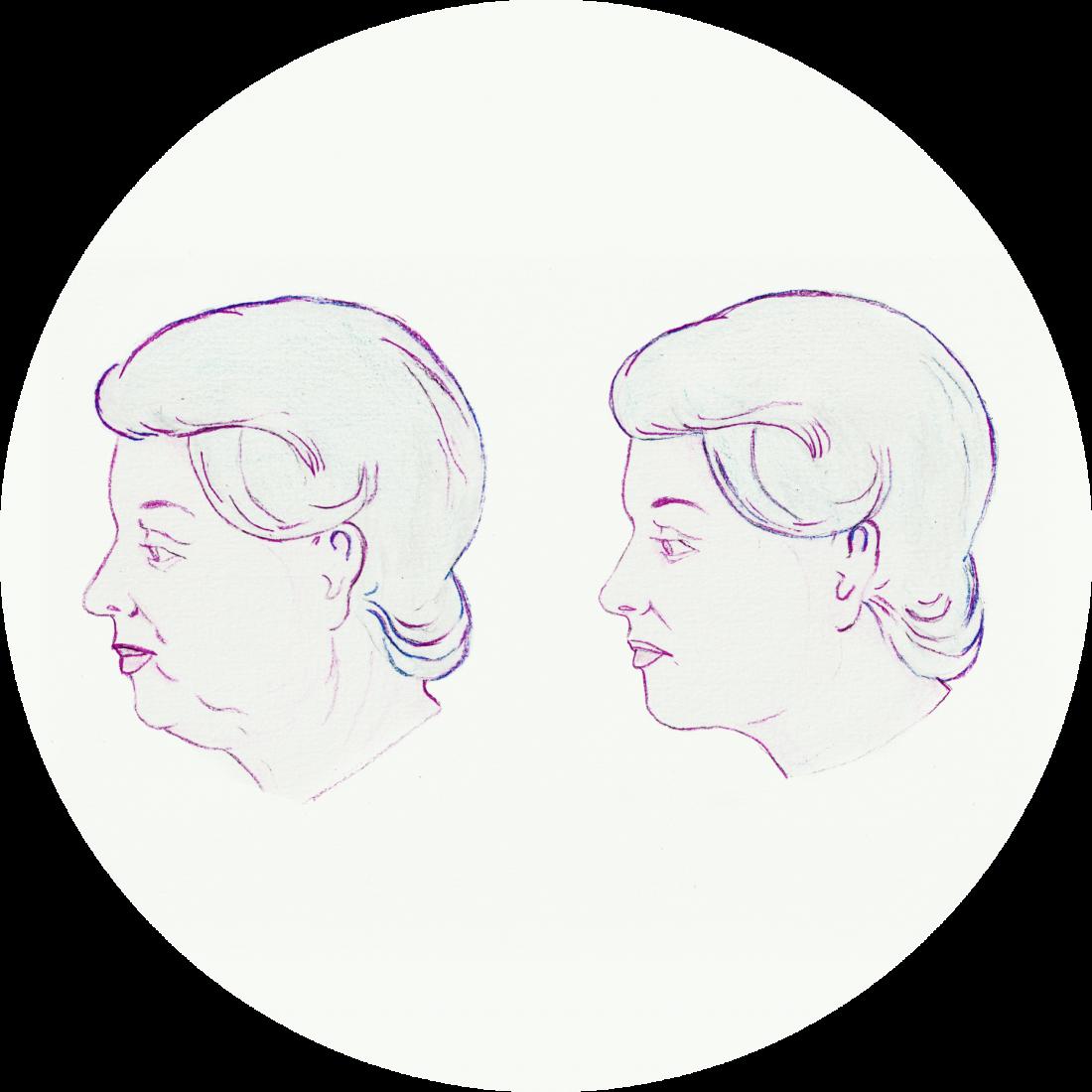 Procedure details: Facelift