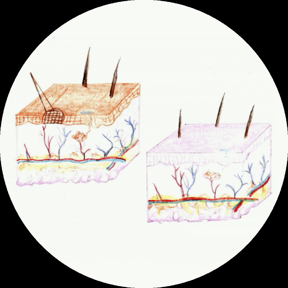 Procedure details: Scar Removal