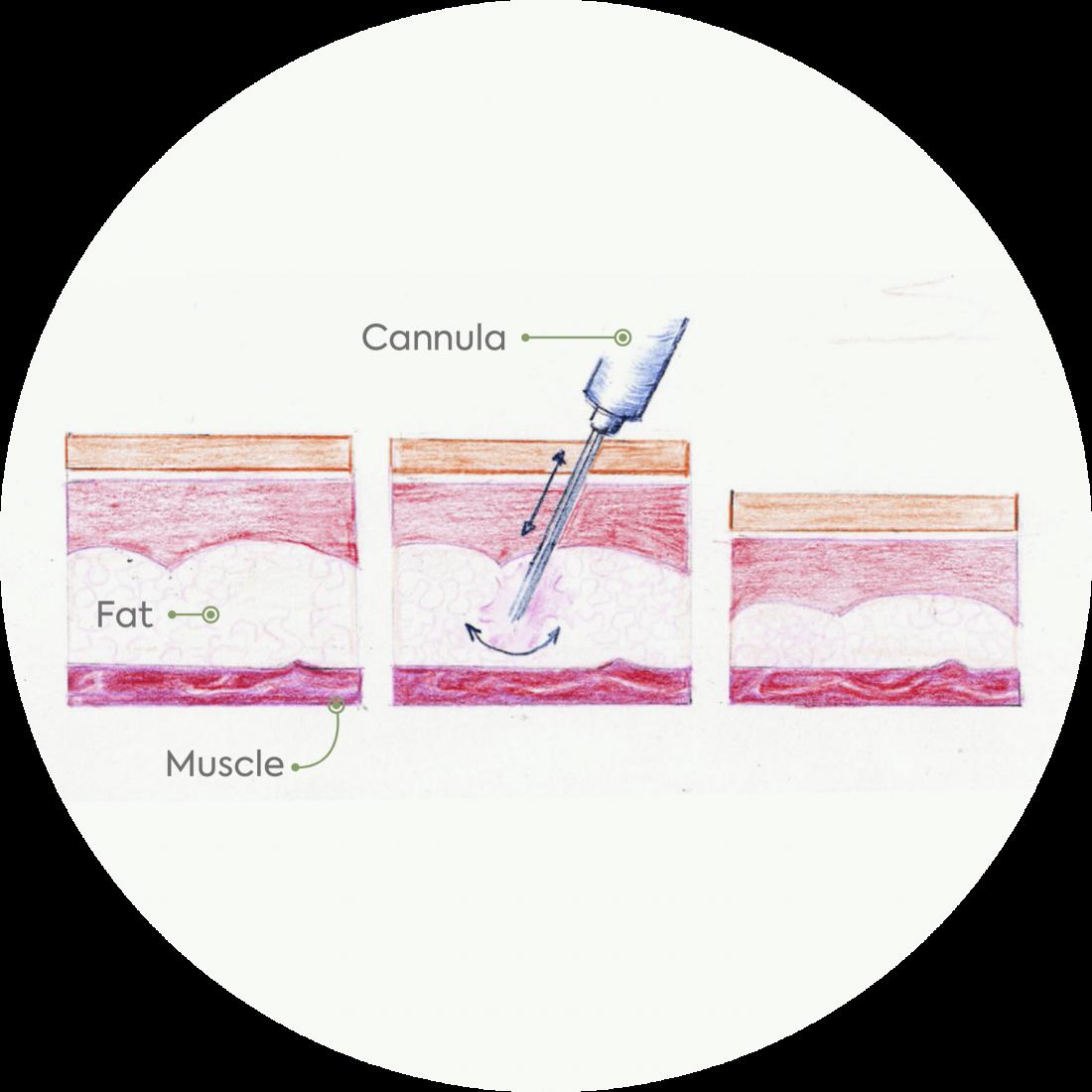 Procedure details: Vaser Liposuction